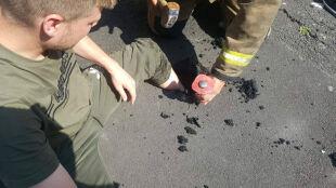 Roztopiony asfalt uwięził mężczyznę. Jego nogę ratowali strażacy